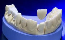 Cercon Zähne Zahn Gebiss
