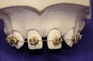 Feste Zahnspange Zahn Zähne