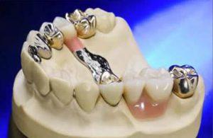 Geschiebe Gebis Zahn Zähne