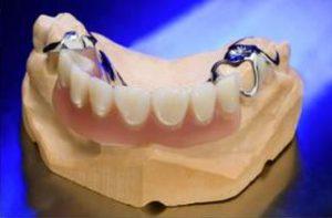 Modellguss Zähne Zahn Gebiss