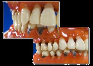 Parodontitistherapie Paradontose Zähne Gebiss