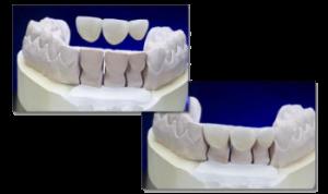 Veneer Gebiss Zähne Zahn