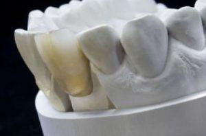 Zahn Gebiss Vollkeramik Zähne