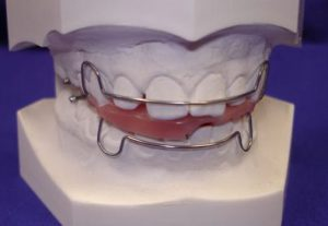 Zahnspange Zähne Zahn